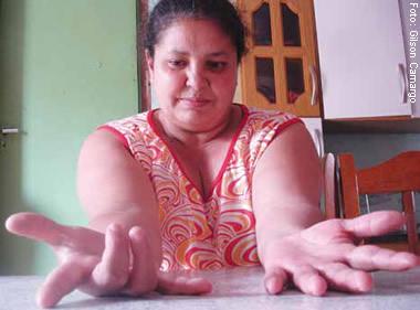Loreci, 40 anos, aguarda aposentadoria: depressão, dor e imobilidade das mãos