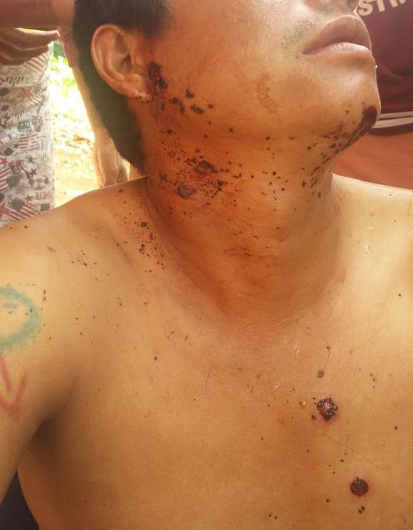 Guarani Kaiowá ferido durante ataques às retomadas em Dourados